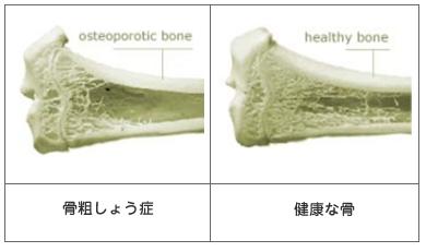 骨粗しょう症1.png